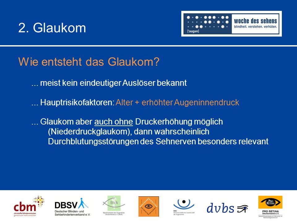 2.Glaukom Wie entsteht das Glaukom?... meist kein eindeutiger Auslöser bekannt...