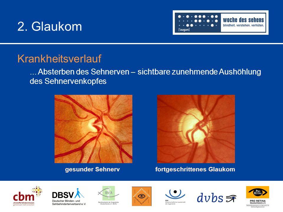 2.Glaukom Krankheitsverlauf...