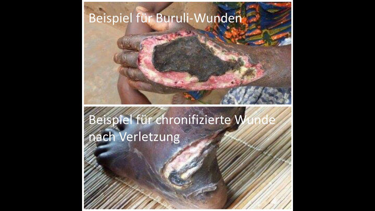 Beispiel für chronifizierte Wunde nach Verletzung Beispiel für Buruli-Wunden