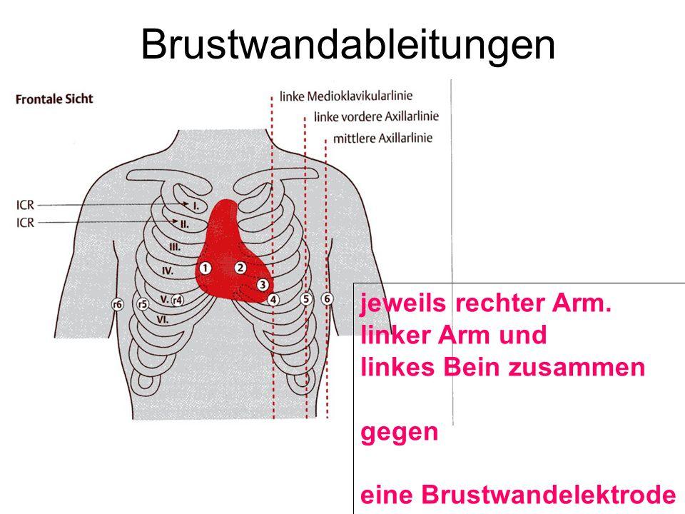 Brustwandableitungen jeweils rechter Arm. linker Arm und linkes Bein zusammen gegen eine Brustwandelektrode