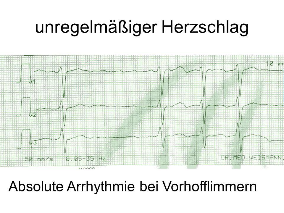 unregelmäßiger Herzschlag Absolute Arrhythmie bei Vorhofflimmern