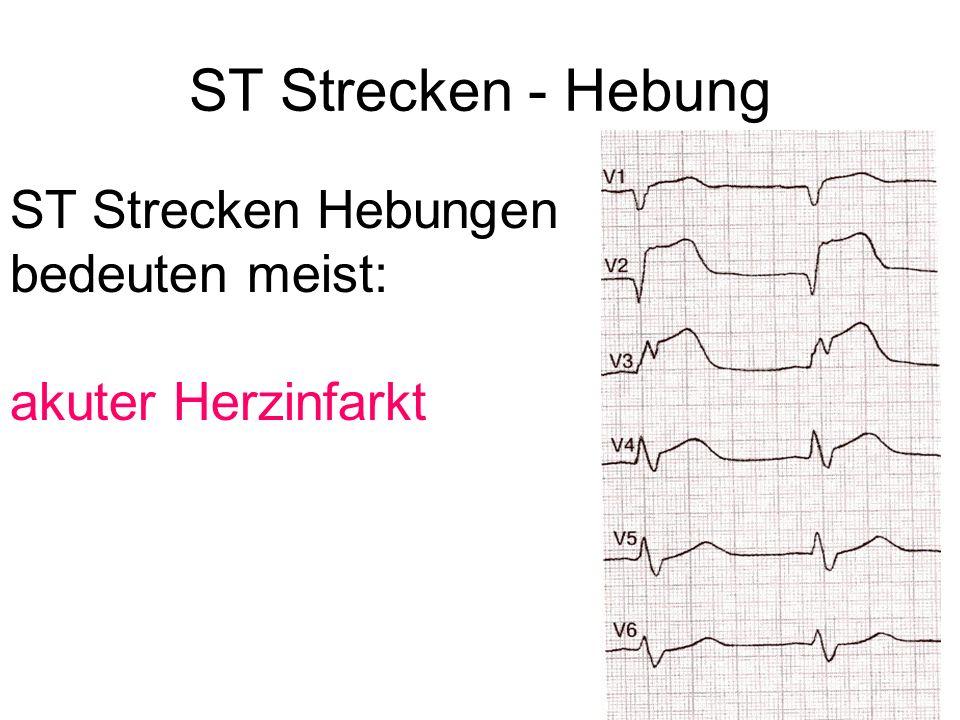 ST Strecken - Hebung ST Strecken Hebungen bedeuten meist: akuter Herzinfarkt