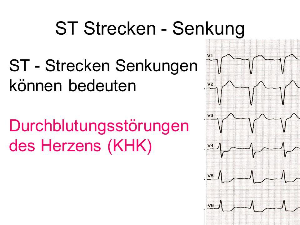 ST Strecken - Senkung ST - Strecken Senkungen können bedeuten Durchblutungsstörungen des Herzens (KHK)