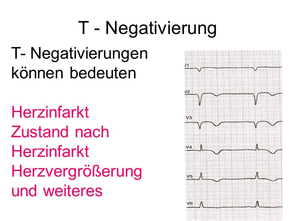 T - Negativierung T- Negativierungen können bedeuten Herzinfarkt Zustand nach Herzinfarkt Herzvergrößerung und weiteres