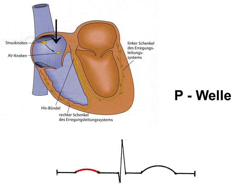 P - Welle ↓