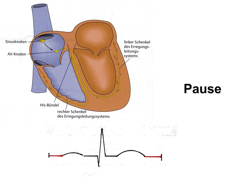 Ableitung Die elektrische Aktivitäten des Herzen sind stärker als die aller anderen Muskeln Weil im Herzen unterschiedliche Regionen in verschiedenen Erregungszuständen sind, besteht zwischen ihnen eine Spannungs - Differenz, die sich im Körper ausbreitet.