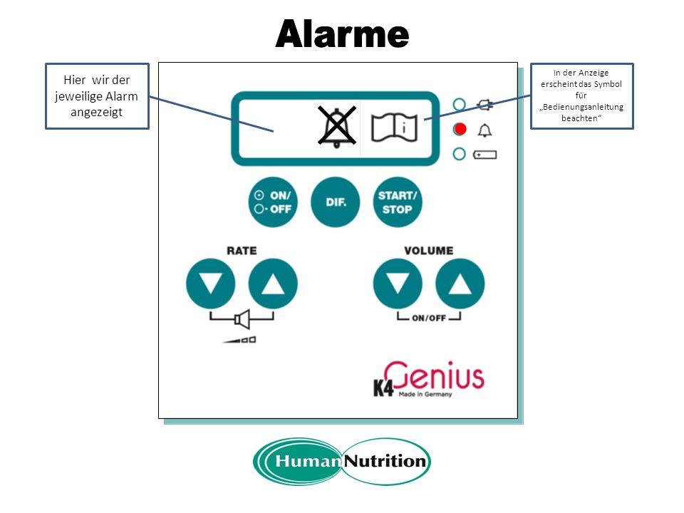 A Alarmanzeige blinkt rot In der Anzeige erscheint das Alarmsymbol Der Alarm kann mit der DIF.-Taste für 3min stummgeschaltet werden