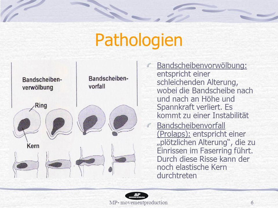 MP- movementproduction6 Pathologien Bandscheibenvorwölbung: entspricht einer schleichenden Alterung, wobei die Bandscheibe nach und nach an Höhe und Spannkraft verliert.
