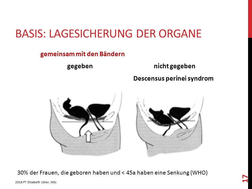 BASIS: LAGESICHERUNG DER ORGANE gemeinsam mit den Bändern gegeben nicht gegeben Descensus perinei syndrom 2016 PT Elisabeth Udier, MSc 17 30% der Frau