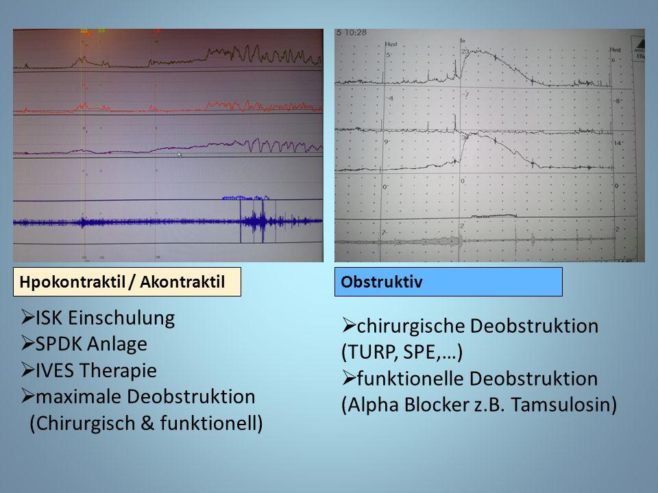 ObstruktivHpokontraktil / Akontraktil  ISK Einschulung  SPDK Anlage  IVES Therapie  maximale Deobstruktion (Chirurgisch & funktionell)  chirurgische Deobstruktion (TURP, SPE,…)  funktionelle Deobstruktion (Alpha Blocker z.B.