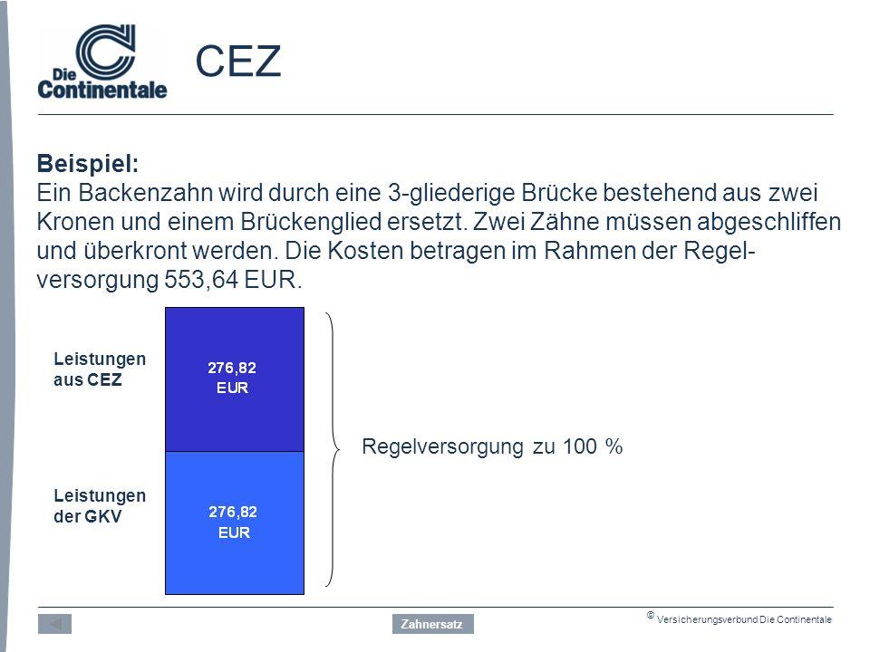 © Versicherungsverbund Die Continentale CEZ Beispiel: Ein Backenzahn wird durch eine 3-gliederige Brücke bestehend aus zwei Kronen und einem Brückenglied ersetzt.