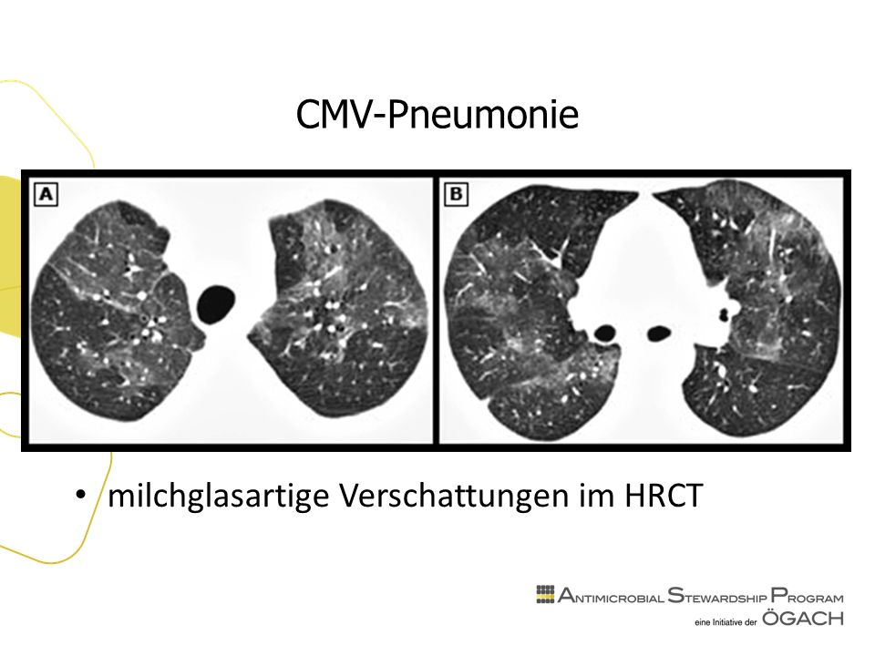 CMV-Pneumonie milchglasartige Verschattungen im HRCT