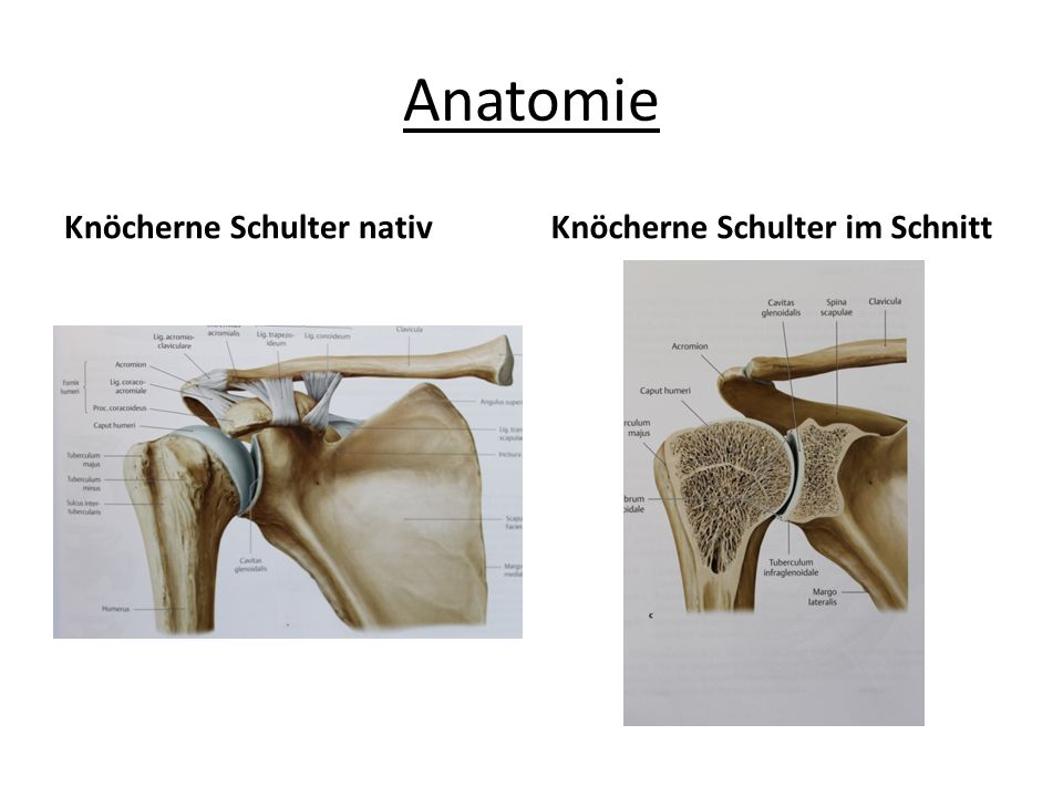 Anatomie Knöcherne Schulter nativKnöcherne Schulter im Schnitt