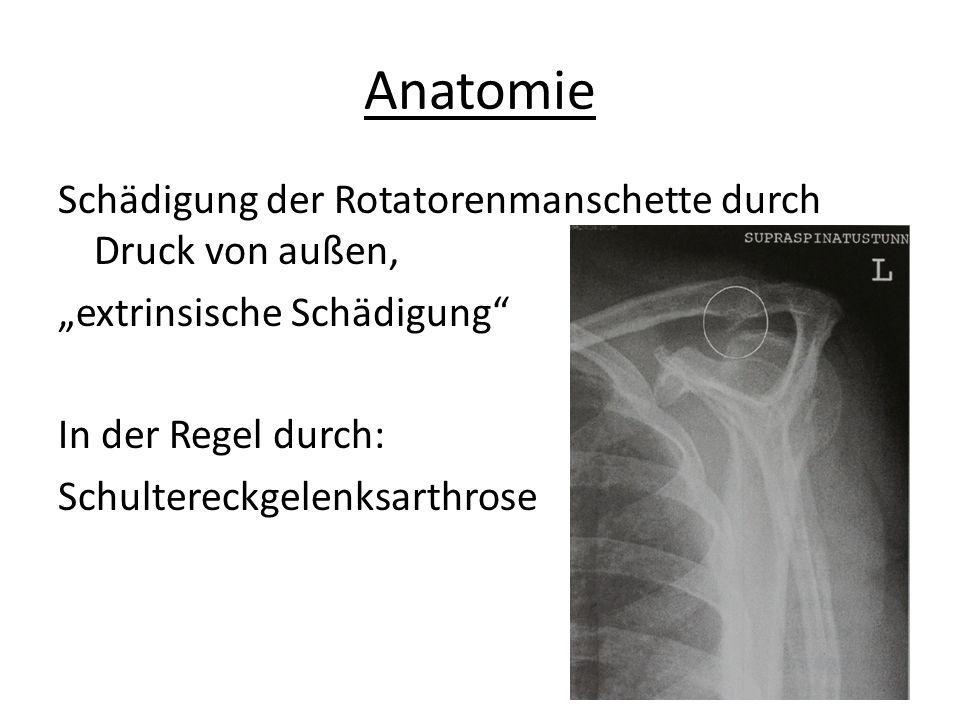 """Anatomie Schädigung der Rotatorenmanschette durch Druck von außen, """"extrinsische Schädigung In der Regel durch: Schultereckgelenksarthrose"""
