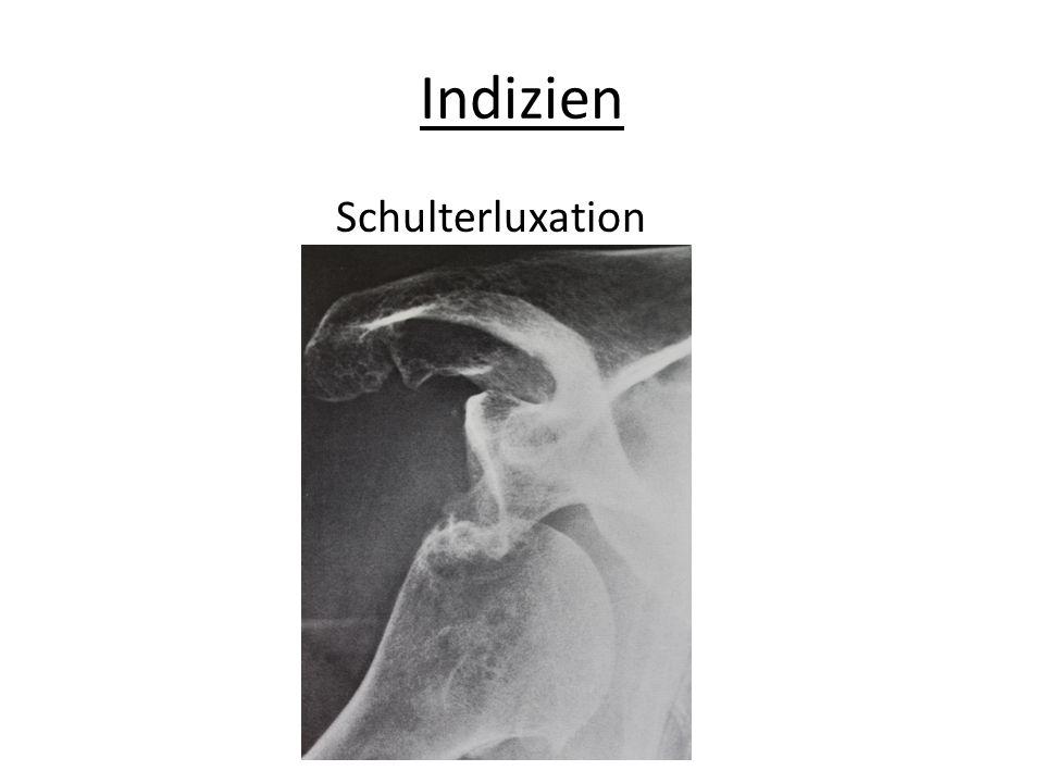 Indizien Schulterluxation