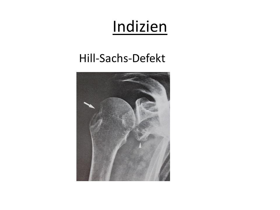 Indizien Hill-Sachs-Defekt
