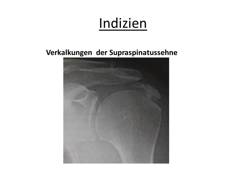 Indizien Verkalkungen der Supraspinatussehne
