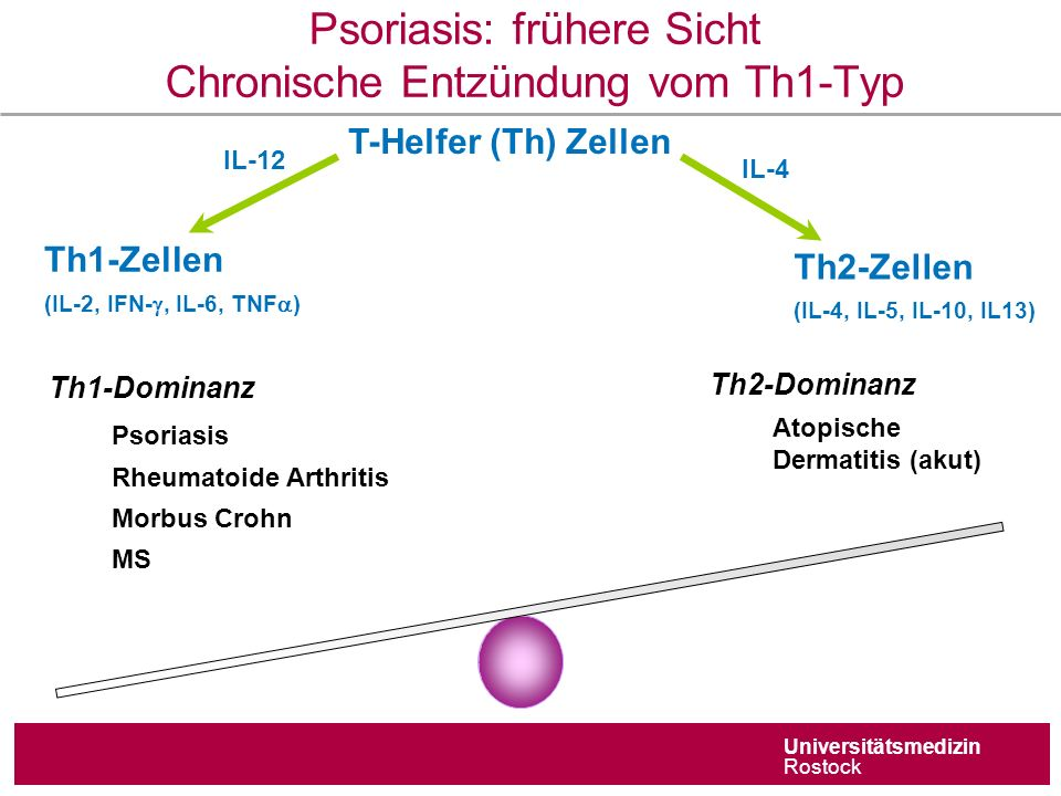 Universitätsmedizin Rostock Psoriasis: frühere Sicht Chronische Entzündung vom Th1-Typ T-Helfer (Th) Zellen IL-12 Th1-Zellen (IL-2, IFN- , IL-6, TNF  ) Th2-Zellen (IL-4, IL-5, IL-10, IL13) IL-4 Th2-Dominanz Atopische Dermatitis (akut) Th1-Dominanz Psoriasis Rheumatoide Arthritis Morbus Crohn MS