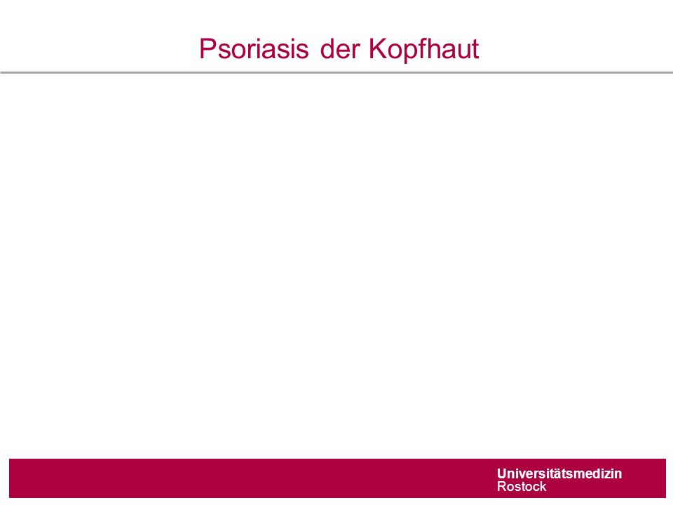 Universitätsmedizin Rostock Psoriasis der Kopfhaut