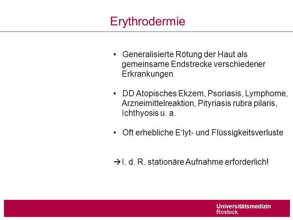 Universitätsmedizin Rostock Erythrodermie Generalisierte Rötung der Haut als gemeinsame Endstrecke verschiedener Erkrankungen DD Atopisches Ekzem, Psoriasis, Lymphome, Arzneimittelreaktion, Pityriasis rubra pilaris, Ichthyosis u.