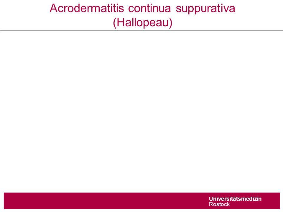 Universitätsmedizin Rostock Acrodermatitis continua suppurativa (Hallopeau)