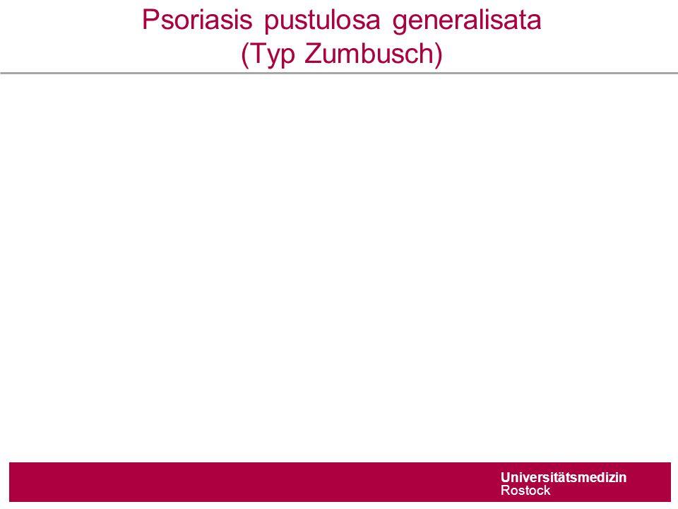 Universitätsmedizin Rostock Psoriasis pustulosa generalisata (Typ Zumbusch)