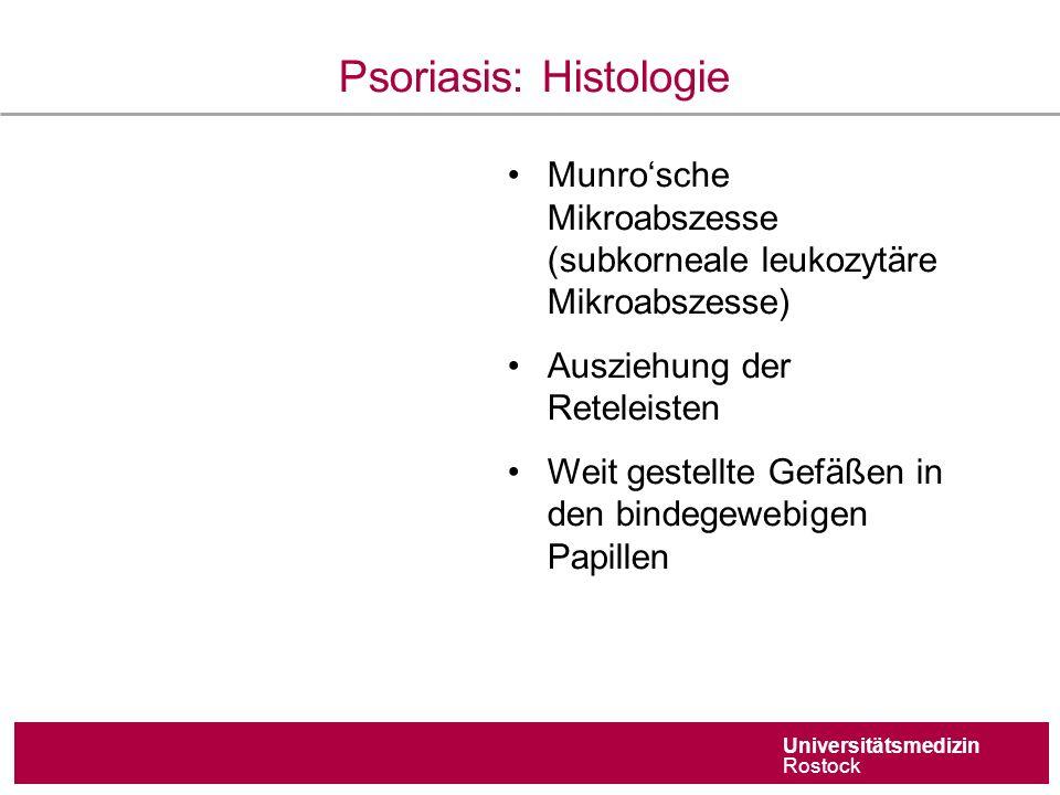 Universitätsmedizin Rostock Psoriasis: Histologie Munro'sche Mikroabszesse (subkorneale leukozytäre Mikroabszesse) Ausziehung der Reteleisten Weit gestellte Gefäßen in den bindegewebigen Papillen