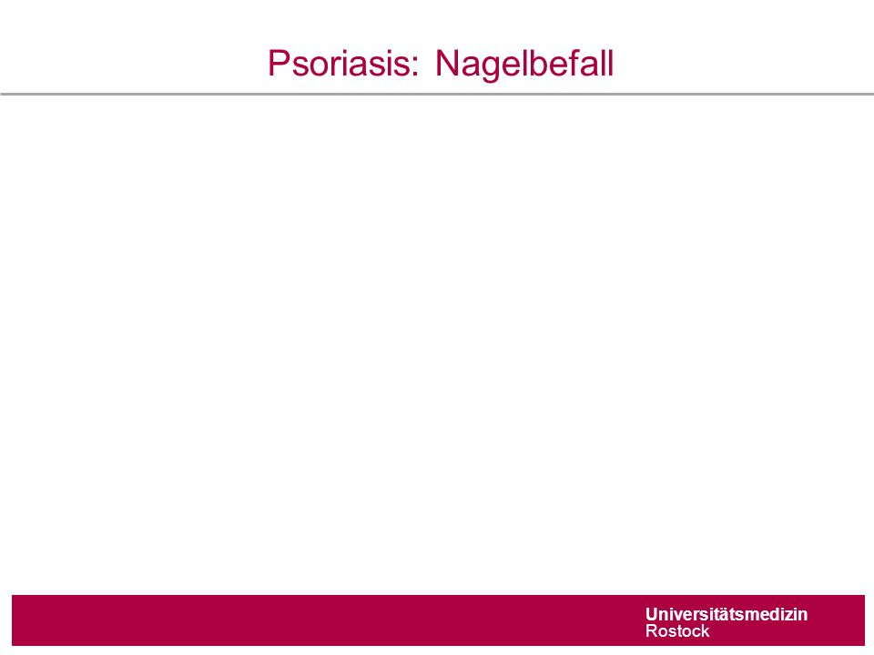Universitätsmedizin Rostock Psoriasis: Nagelbefall Befall der Nagelmatrix 'Tüpfelnägel' Befall des Nagelbetts,Ölflecken' Subunguale Hyperkeratose