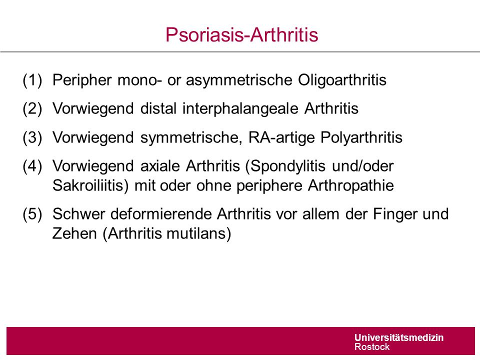 Universitätsmedizin Rostock Psoriasis-Arthritis (1)Peripher mono- or asymmetrische Oligoarthritis (2)Vorwiegend distal interphalangeale Arthritis (3)Vorwiegend symmetrische, RA-artige Polyarthritis (4)Vorwiegend axiale Arthritis (Spondylitis und/oder Sakroiliitis) mit oder ohne periphere Arthropathie (5)Schwer deformierende Arthritis vor allem der Finger und Zehen (Arthritis mutilans)