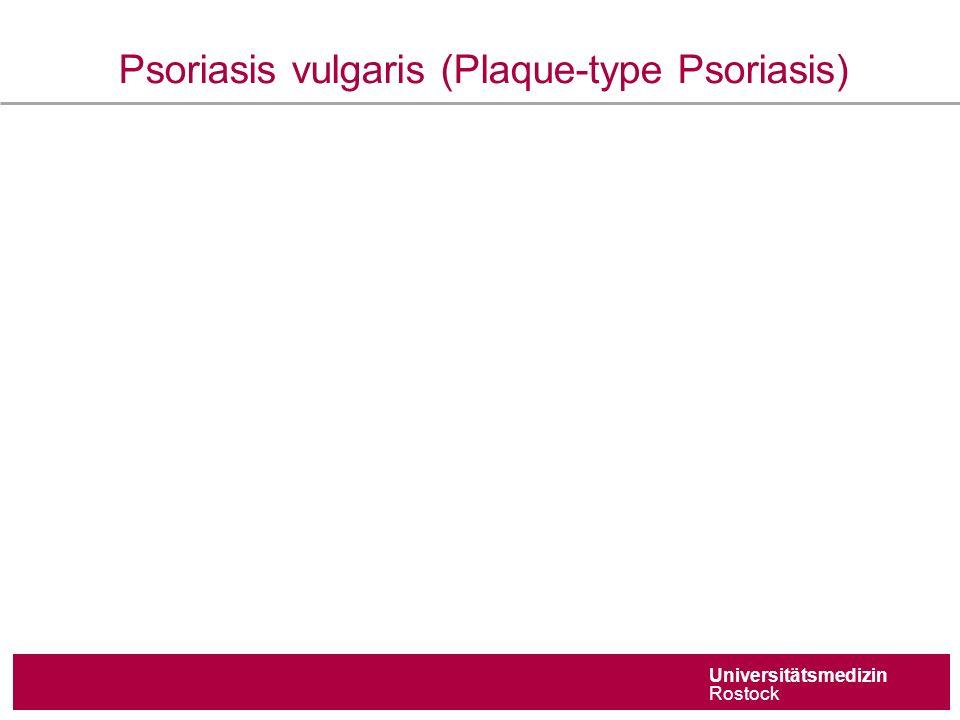 Universitätsmedizin Rostock Psoriasis vulgaris (Plaque-type Psoriasis)