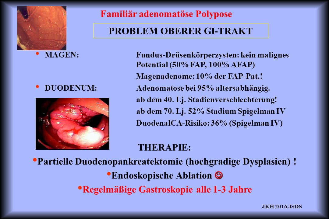 Familiär adenomatöse Polypose PROBLEM OBERER GI-TRAKT MAGEN: Fundus-Drüsenkörperzysten: kein malignes Potential (50% FAP, 100% AFAP) Magenadenome: 10% der FAP-Pat..