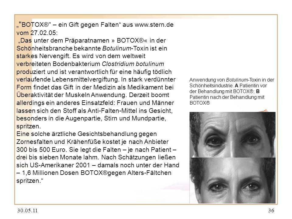 30.05.1136 Anwendung von Botulinum-Toxin in der Schönheitsindustrie. A Patientin vor der Behandlung mit BOTOX®; B Patientin nach der Behandlung mit BO