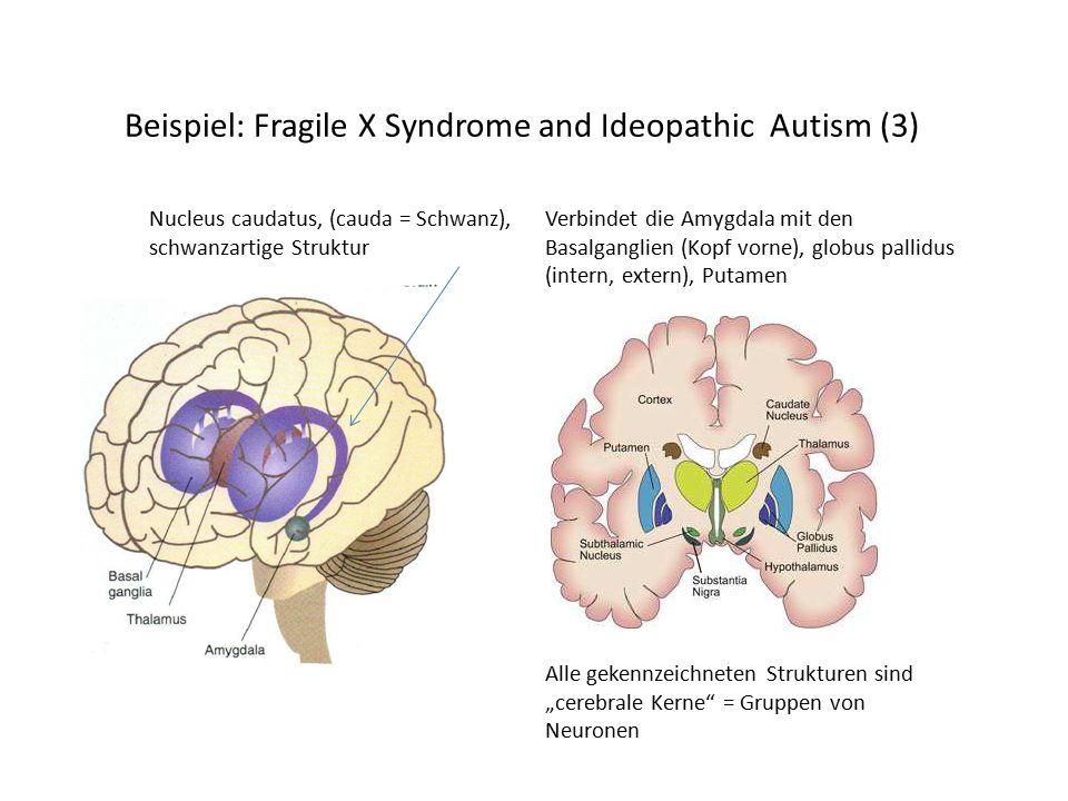 """Beispiel: Fragile X Syndrome and Ideopathic Autism (3) Nucleus caudatus, (cauda = Schwanz), schwanzartige Struktur Verbindet die Amygdala mit den Basalganglien (Kopf vorne), globus pallidus (intern, extern), Putamen Alle gekennzeichneten Strukturen sind """"cerebrale Kerne = Gruppen von Neuronen"""