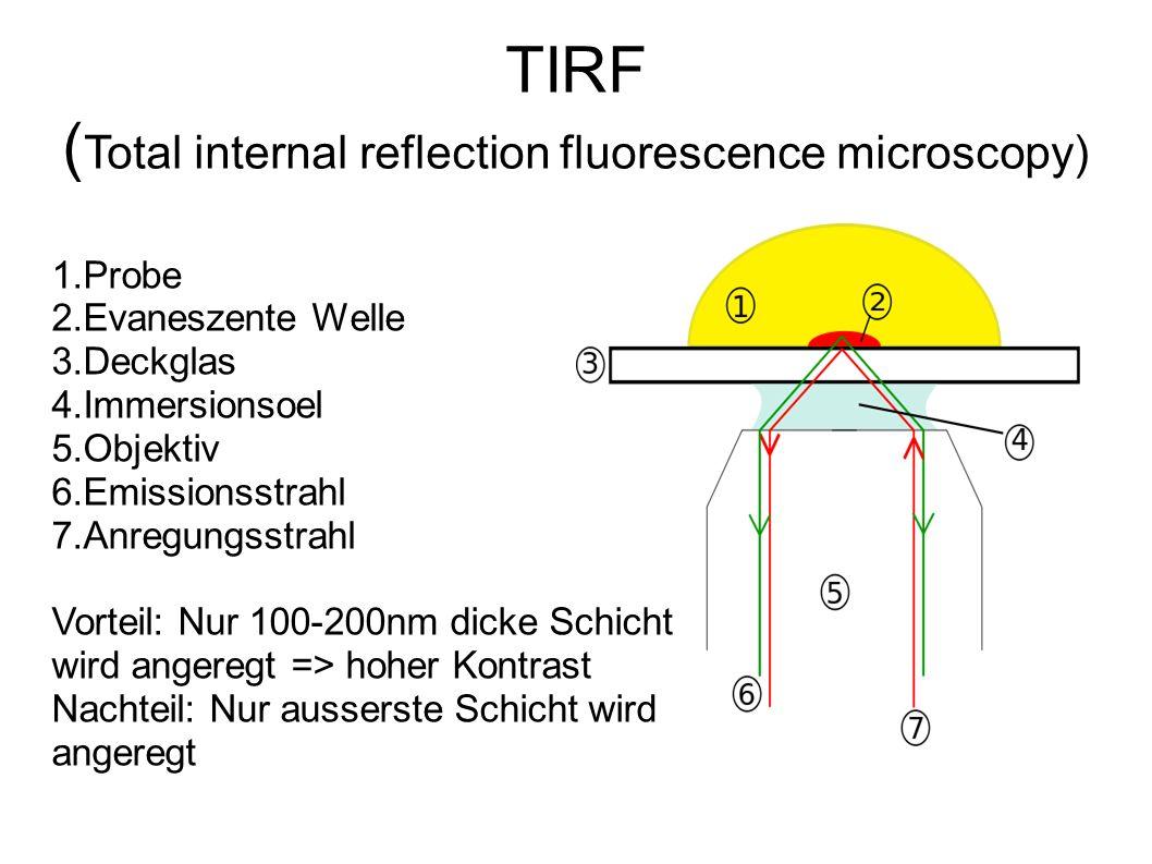 Fluoreszenz der Proteine ● Durch das Mikroskop werden nur fluoreszierende Molekuele sichtbar gemacht ● Betrachtet werden also nur Proteine die fluoreszierende Molekuele eingebaut haben.