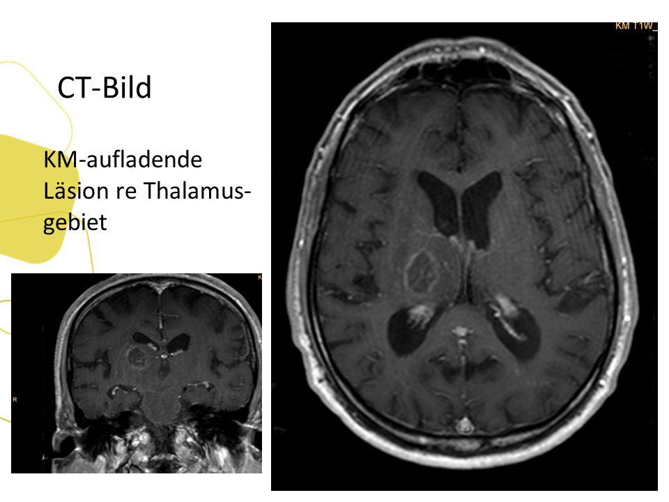 CT-Bild KM-aufladende Läsion re Thalamus- gebiet