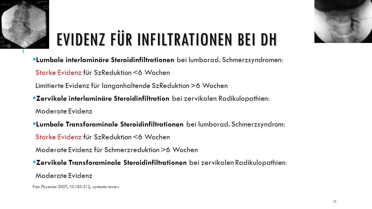 EVIDENZ FÜR INFILTRATIONEN BEI DH  Lumbale interlaminäre Steroidinfiltrationen bei lumborad.