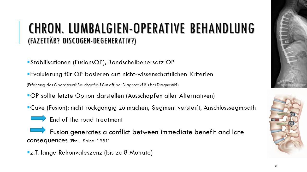 CHRON. LUMBALGIEN-OPERATIVE BEHANDLUNG (FAZETTÄR.