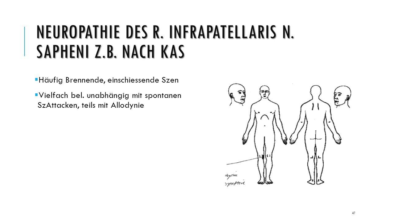 NEUROPATHIE DES R. INFRAPATELLARIS N. SAPHENI Z.B.