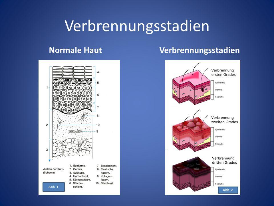 Verbrennungsstadien Normale HautVerbrennungsstadien Abb. 2 Abb. 1