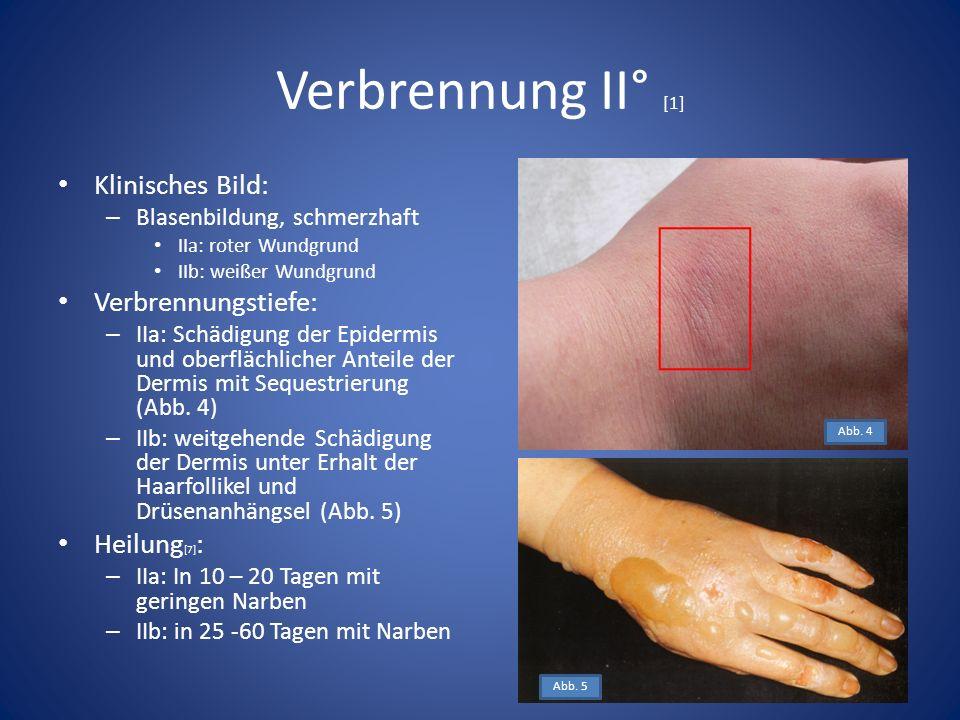 Verbrennung II° [1] Klinisches Bild: – Blasenbildung, schmerzhaft IIa: roter Wundgrund IIb: weißer Wundgrund Verbrennungstiefe: – IIa: Schädigung der Epidermis und oberflächlicher Anteile der Dermis mit Sequestrierung (Abb.