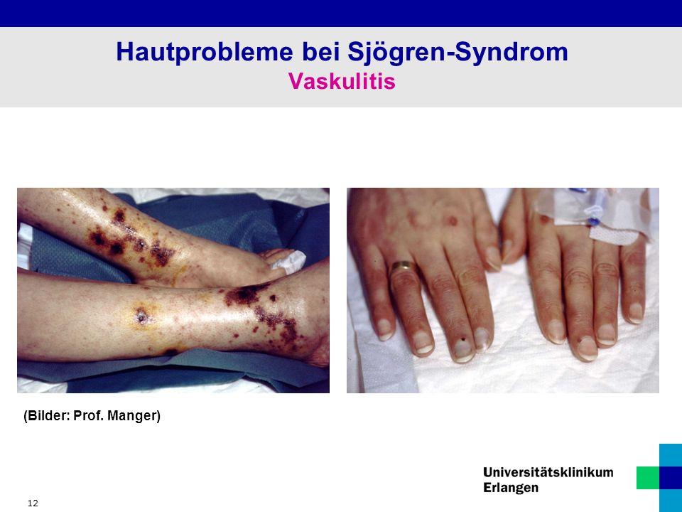 12 Hautprobleme bei Sjögren-Syndrom Vaskulitis (Bilder: Prof. Manger)