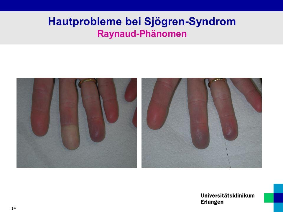 14 Hautprobleme bei Sjögren-Syndrom Raynaud-Phänomen