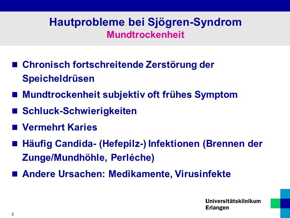 5 Hautprobleme bei Sjögren-Syndrom Mundtrockenheit Chronisch fortschreitende Zerstörung der Speicheldrüsen Mundtrockenheit subjektiv oft frühes Symptom Schluck-Schwierigkeiten Vermehrt Karies Häufig Candida- (Hefepilz-) Infektionen (Brennen der Zunge/Mundhöhle, Perléche) Andere Ursachen: Medikamente, Virusinfekte