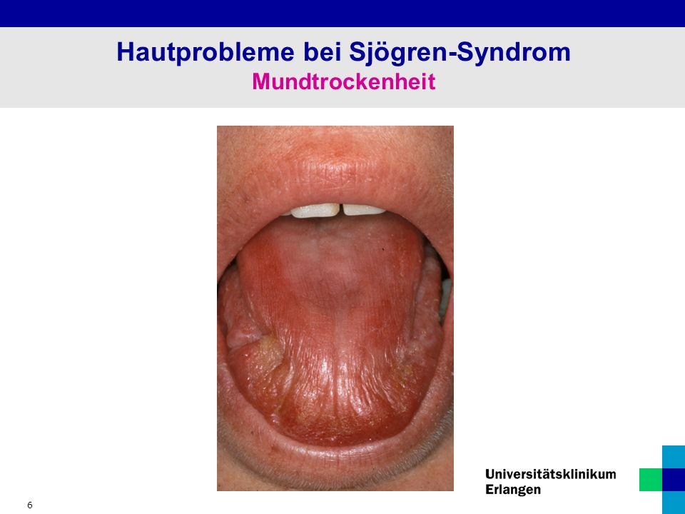 6 Hautprobleme bei Sjögren-Syndrom Mundtrockenheit