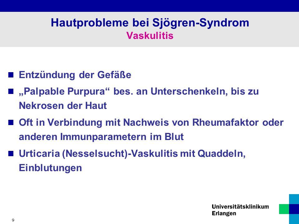 "9 Hautprobleme bei Sjögren-Syndrom Vaskulitis Entzündung der Gefäße ""Palpable Purpura bes."