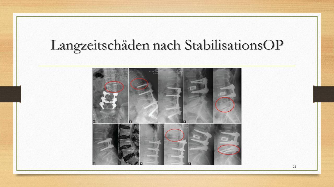 Langzeitschäden nach StabilisationsOP 26