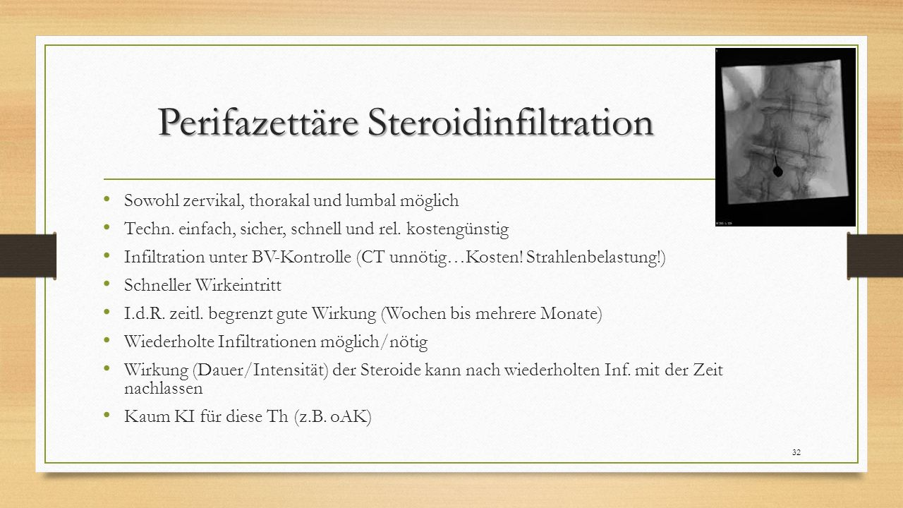 Perifazettäre Steroidinfiltration Sowohl zervikal, thorakal und lumbal möglich Techn. einfach, sicher, schnell und rel. kostengünstig Infiltration unt