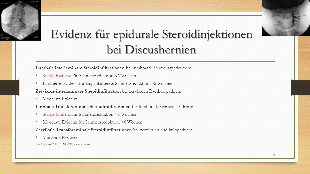 Konservative Optionen Medikamente, (PhysioTh…) Perifazettäre Steroidinfiltrationen Thermokoagulation der Medial Branches 30