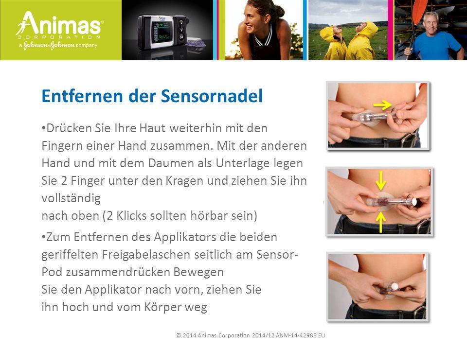 © 2014 Animas Corporation 2014/12 ANM-14-4298B EU Entfernen der Sensornadel Drücken Sie Ihre Haut weiterhin mit den Fingern einer Hand zusammen.