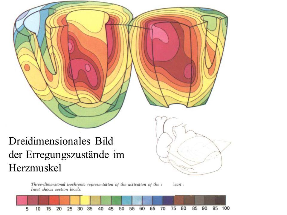 Dreidimensionales Bild der Erregungszustände im Herzmuskel